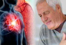 Makanan Ini Mampu Bersihkan Plak di Pembuluh Darah Dapat Mencegah Stroke dan Serangan Jantung